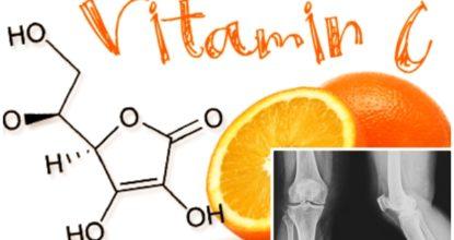 Недостаток витамина С